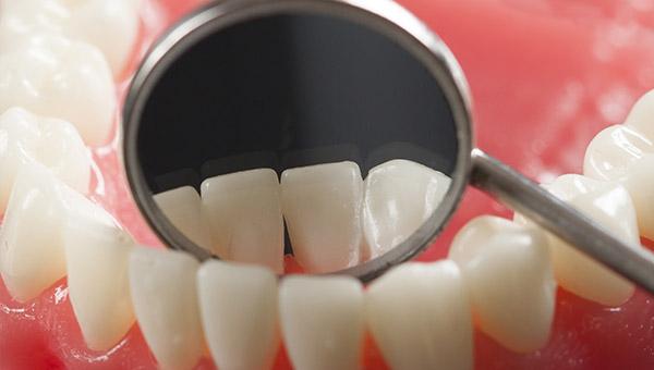 biliotti-img-odontoiatria