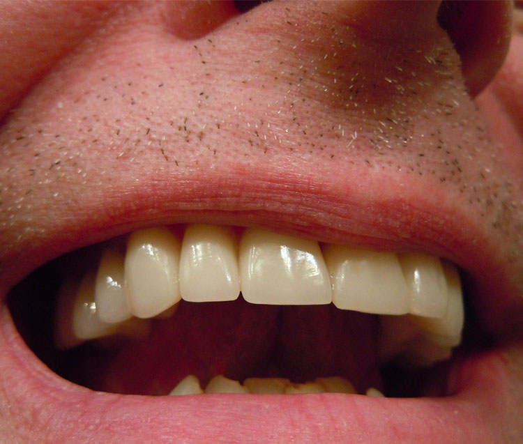Incapsulare un dente: quanto costa